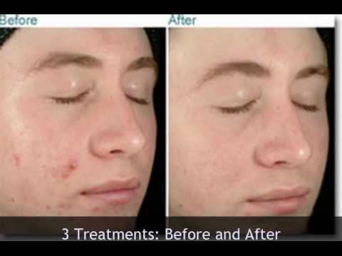 Microdermabrasion: Acne Fighting Treatments:By Facials Miami