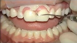 Cosmetic Dentistry - Teeth Bonding & Dental Bonding #1