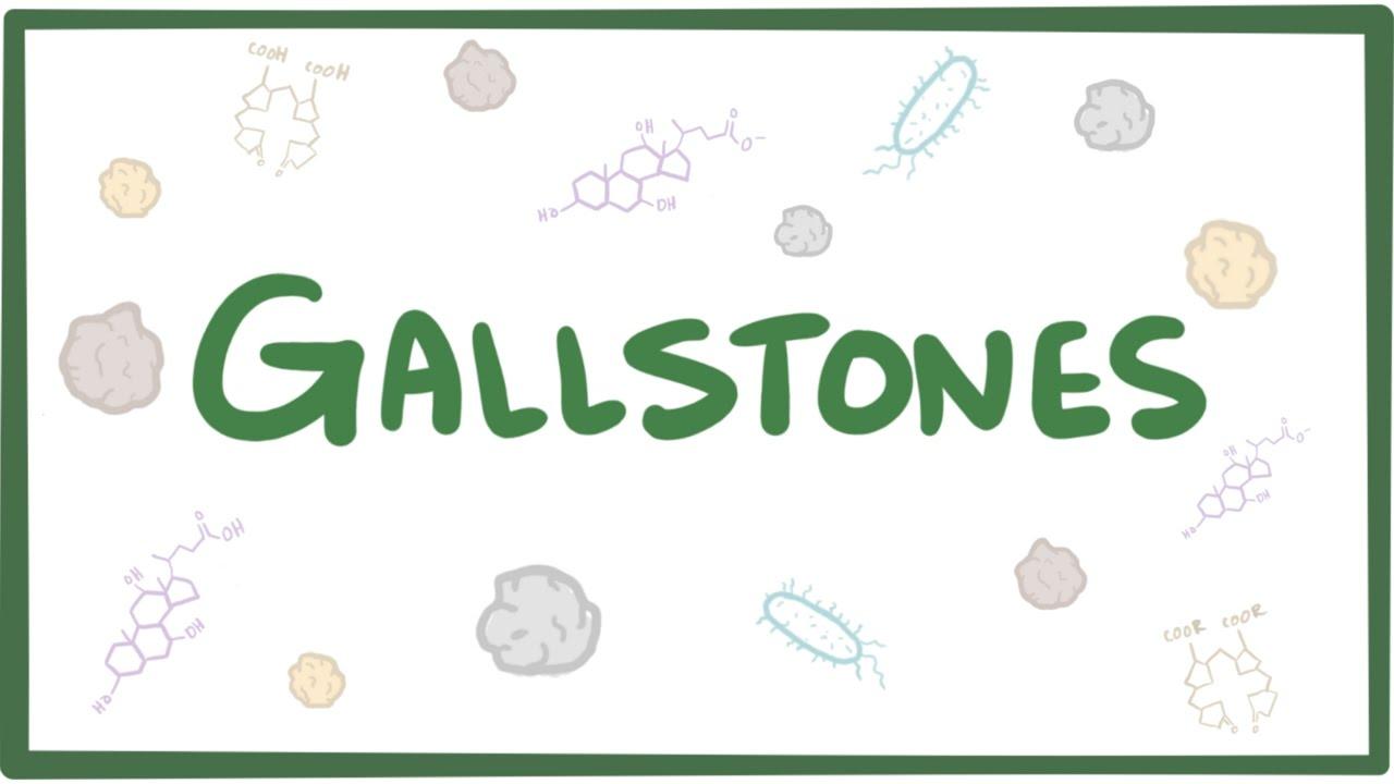 Gallstones (cholelithiasis) - causes, symptoms, diagnosis, treatment &  pathology