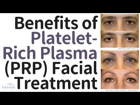 Benefits of Platelet-Rich Plasma (PRP) Facial Treatment, and Why the Vampire Facelift® is Different