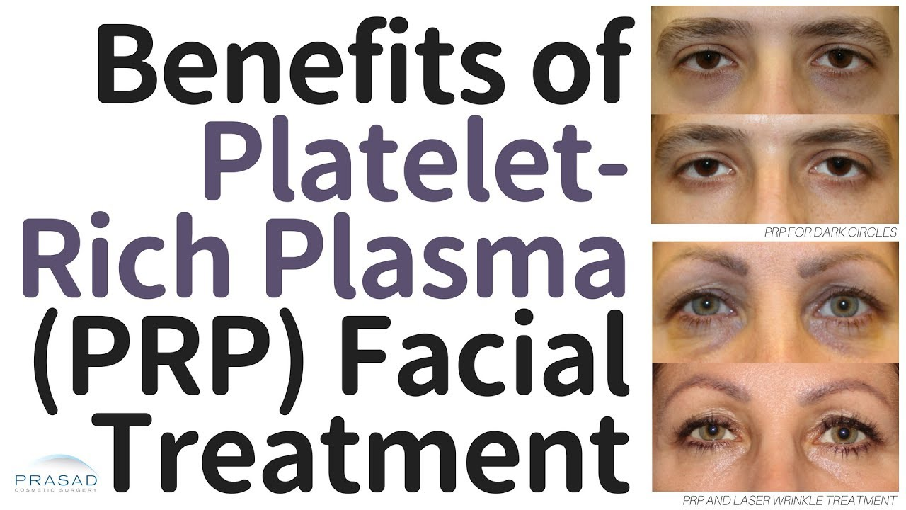 Download Benefits of Platelet-Rich Plasma (PRP) Facial Treatment, and Why the Vampire Facelift® is Different