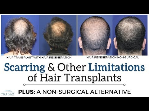 Hair Transplant Limitations   NY Hair Loss