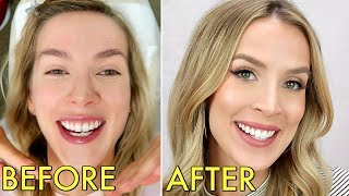 INVISALIGN | PAIN, COST, WAS IT WORTH IT? & EVERYTHING THEY DON'T TELL YOU | LeighAnnSays