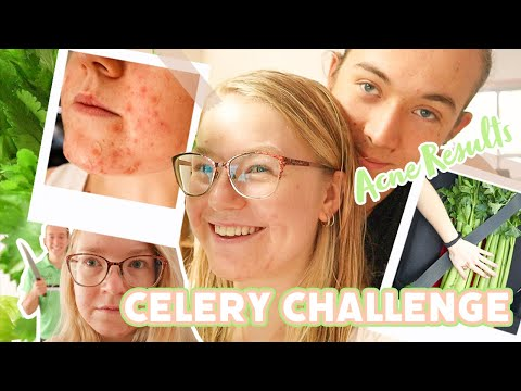 Drinking Celery Juice for 2 Weeks to Clear My Acne! Skin Results + Summary of Benefits!