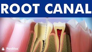 Endodontics - Tooth decay treatment ©