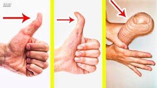 Mira Porque Algunas Personas Tienen Los Dedos Diferentes Al Tuyo