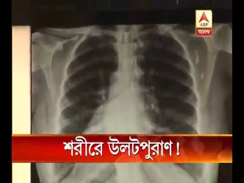 Rare medical case in Calcutta medical college, organs of a lady that is on the opposite si