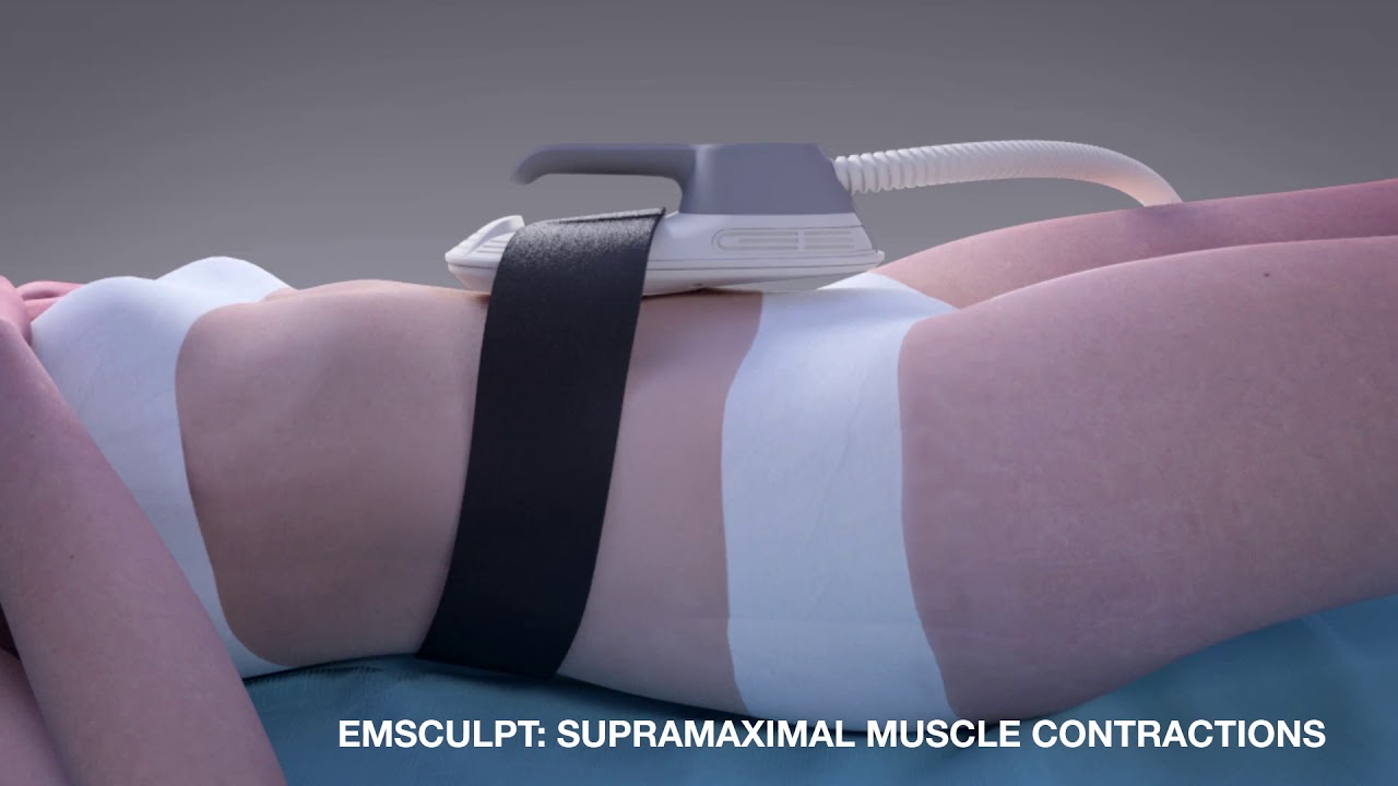 How does the EMSculpt Abdomen Treatment at S-Thetics Clinic work?