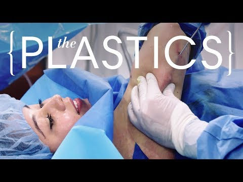 This Underarm Liposuction Costs $10,000 | The Plastics | Harper's BAZAAR