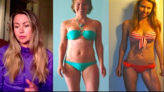 My experience with Liposuction, the truth + short VLOG