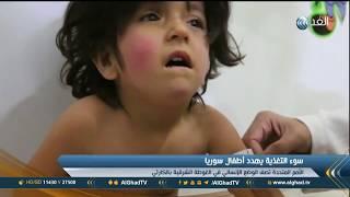 تقرير| الأطفال يعانون من سوء التغذية في مستشفى الغوطة الشرقية بسبب الصراع