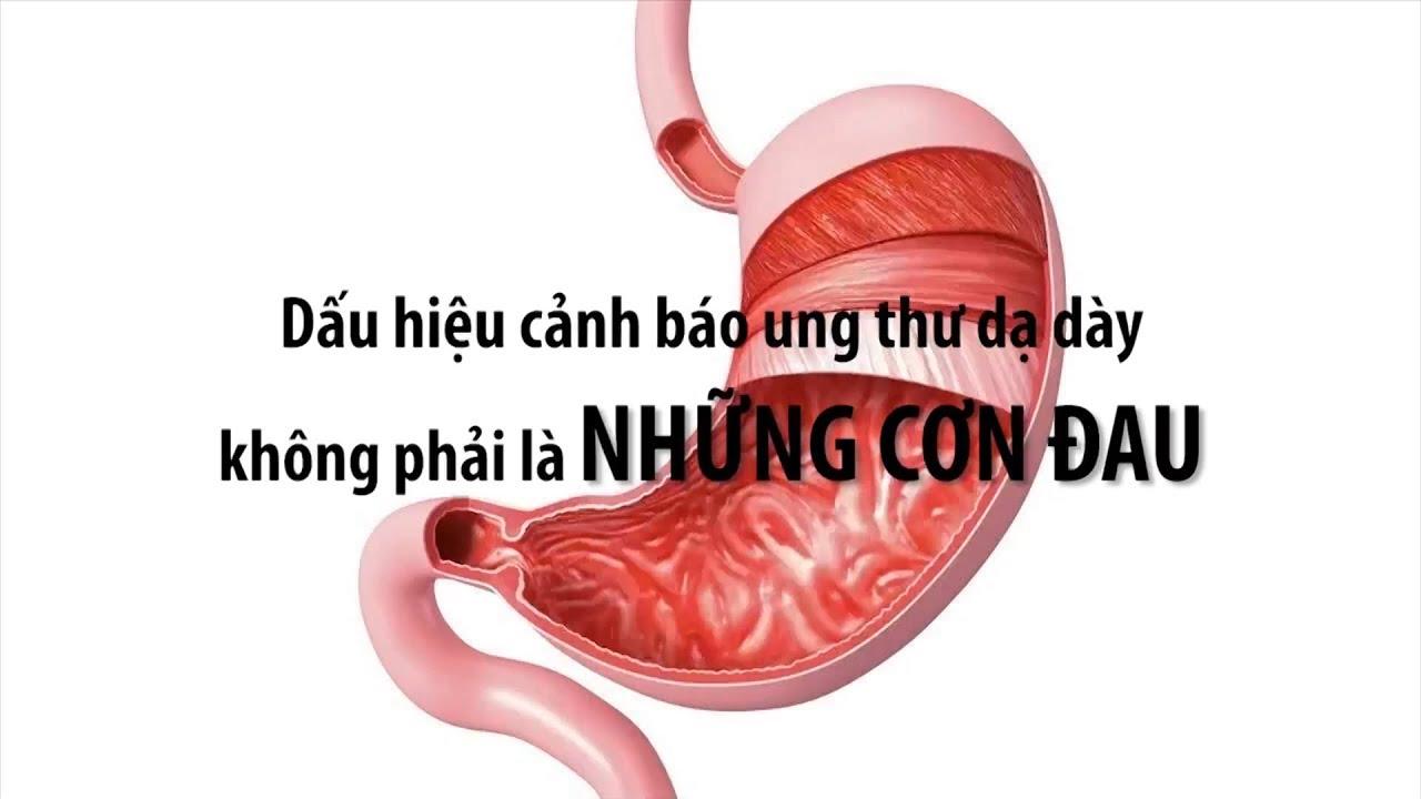 VTC14 | Dấu hiệu cảnh báo ung thư dạ dày không phải là những cơn đau
