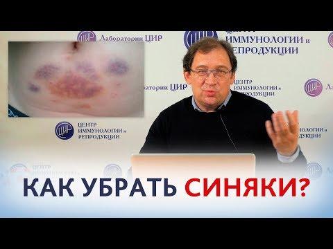 Уколы гепарина. КАК УБРАТЬ СИНЯКИ от уколов гепарина или клексана? Отвечает доктор Гузов.