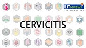What Is Cervicitis ? - YouTube