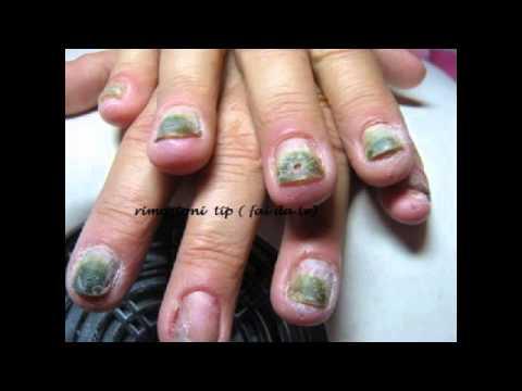 La rimozione delle unghie ha intaccato con un fungo il laser il prezzo