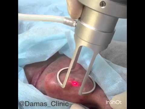 Лазерная шлифовка шрама на носу в клинике Damas