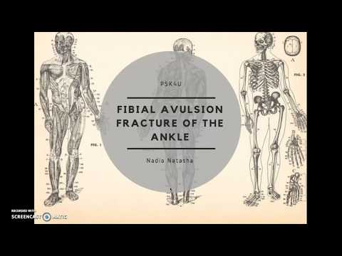 Fibular avulsion fracture of the ankle