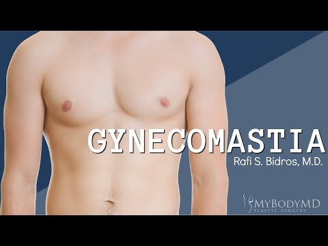 Dr. Rafi S. Bidros with MyBodyMD Plastic Surgery - Houston, TX - What is Gynecomastia?