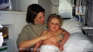 Meningitis in Babies and Children -  Signs of Meningitis in Toddlers