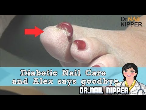 Diabetic Nail Care and Alex says goodbye