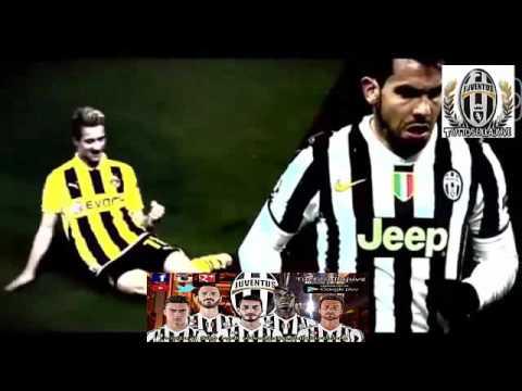 Borussia M'gladbach - Juventus HD 03 Novembre