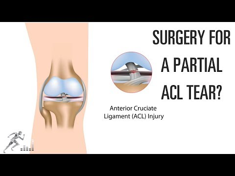 Does a partial ACL tear need surgery?