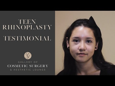 Teenage Rhinoplasty Before and After Images in Orange County