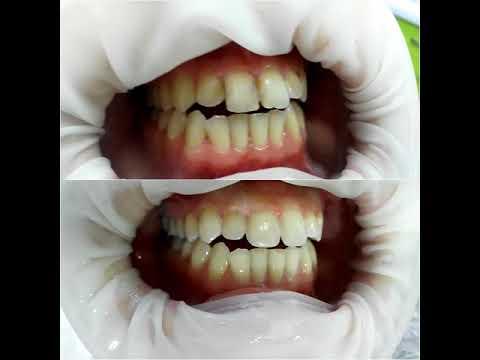 Лечить передние зубы Харьков