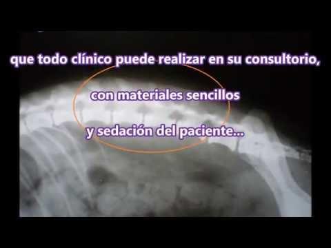 FRACTURA DE COLUMNA EN CANINOS Y FELINOS - Inmovilización externa temporaria