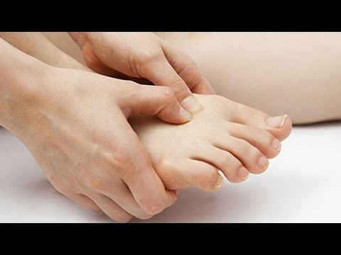 Gout causes, Symptoms and Treatment, How to prevent Gout