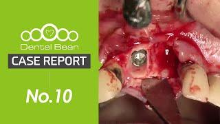 [#Dentalbean No.10] Extraction \u0026 immediate installation, Bone graft, cantilever immediate loading