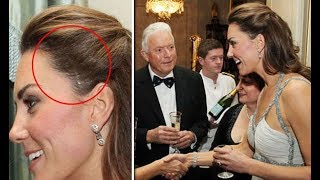 Kate Middleton style | Revealed about the scar on The Duchess of Cambridge's head