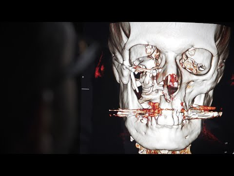 Andy's New Face: How 3-D Tech Is Transforming Surgery