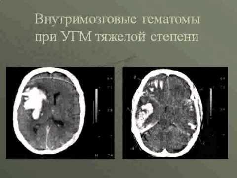 ВМА   острая ЧМТ  КТ классификация ушибов головного мозга