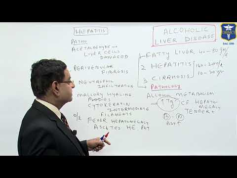 Dr Bhatia discussing on Alcoholic Liver Disease in DBMCI
