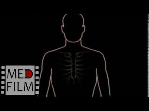 Аортальный стеноз - причины, симптомы, диагностика и лечение
