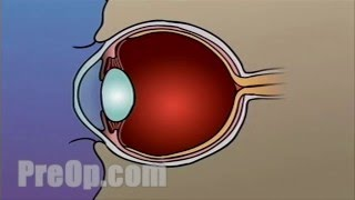 Laser Eye LASIK Surgery PreOp® Patient Engagement and Education