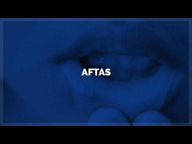 Aftas Bucales -Clínica Dental CCM - Javier Alberdi