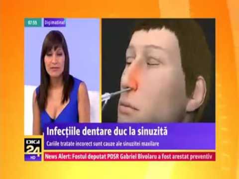 Infectiile dentare duc la sinuzita
