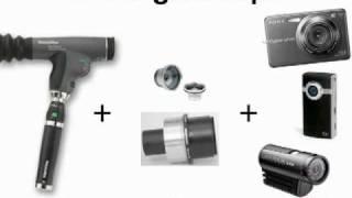 SightScope for DiabetesMine