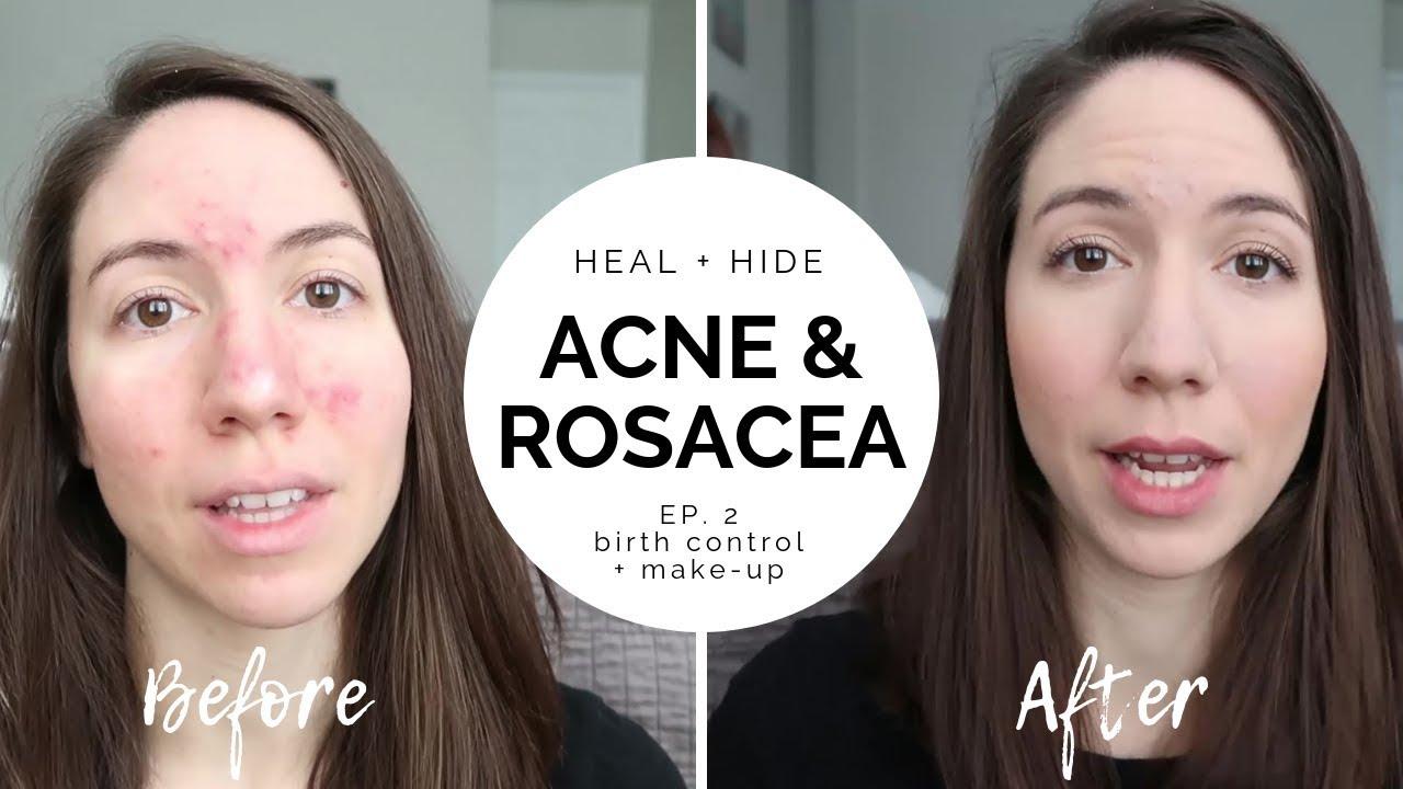 Download HEAL + HIDE Severe Acne & Rosacea // Episode 2 - birth control + makeup