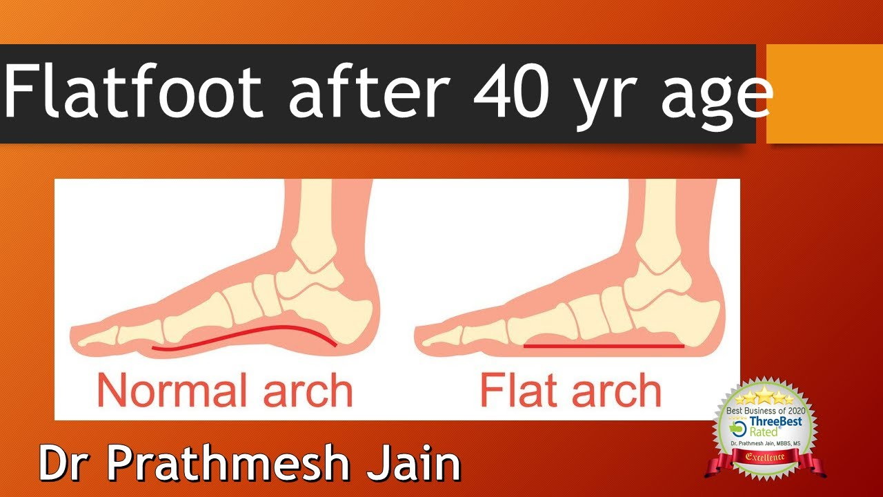 Adult Flat Foot.  Tibialis Posterior dysfunction