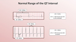 Advanced EKGs - The QT Interval and Long QT Syndrome