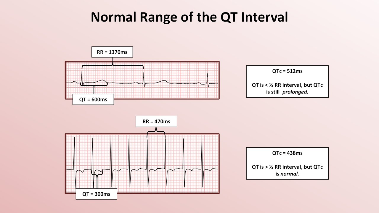 Advanced EKGs - The QT Interval and Long QT Syndrome - YouTube