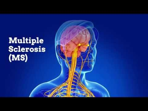 Class II HLA interactions modulate genetic risk for multiple sclerosis