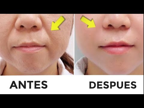 Cómo Quitar Las Arrugas Alrededor De Los Labios Surco Nasogeniano Youtube