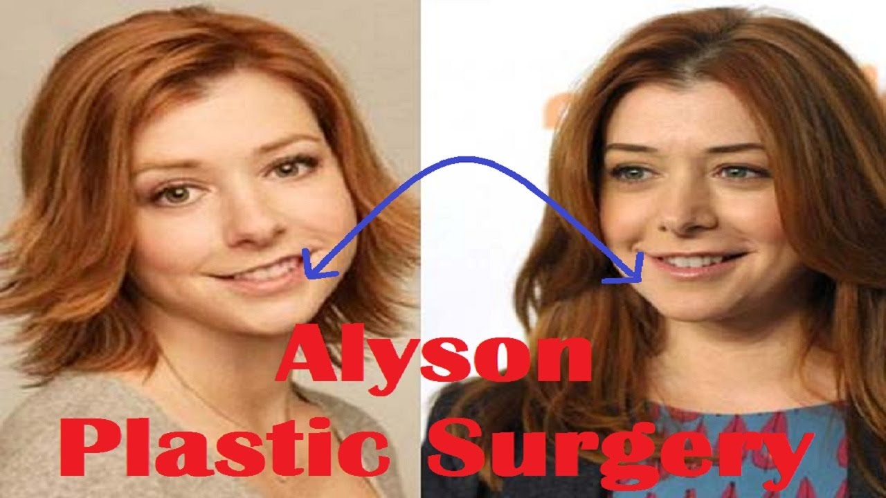 alyson hannigan plastic surgery before and after full hd - youtube