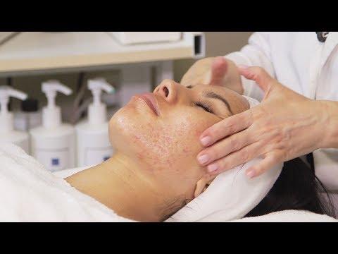 3 Facials Later, Daniella's Hormonal Acne & Skin Care NOW