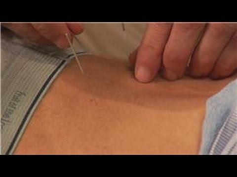 Acupuncture Treatments : Acupuncture as Treatment for Back Pain