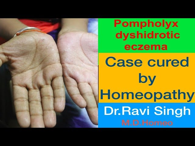 Pompholyx or Dyshidrotic Eczema Homoeopathic Cured Case